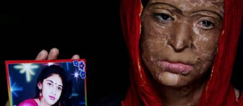 acid_attack_victim