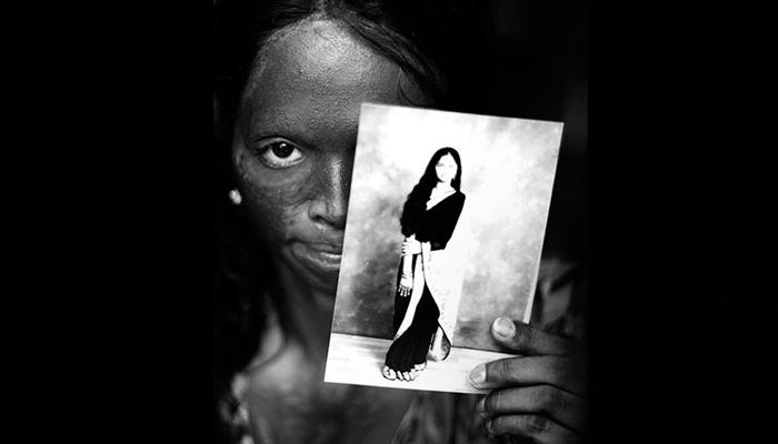 Acid Attack Survivor, Laxmi, Face of the Campaign (Photo credit: Ravi Choudhary)