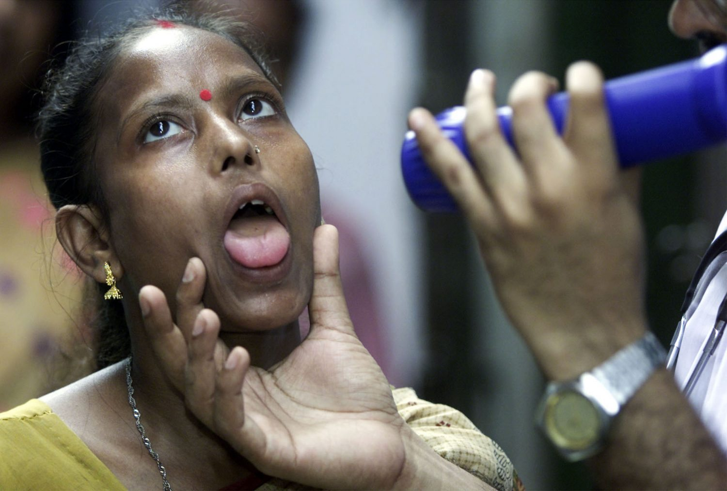 An Indian doctor examines sex worker Geeta Das who's suffering from tuberculosis at a health clinic for prostitutes in the eastern Indian city of Calcutta October 30, 2001. The United Nations said in a report in June that AIDS killed 310,000 people in India in 1999. REUTERS/Jayanta Shaw JS/DL - RTROT6B