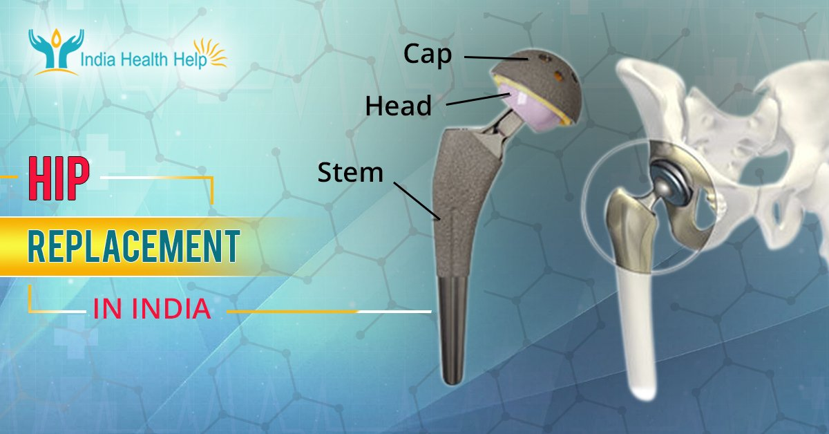 Hip Replacement Surgery with India Health Help