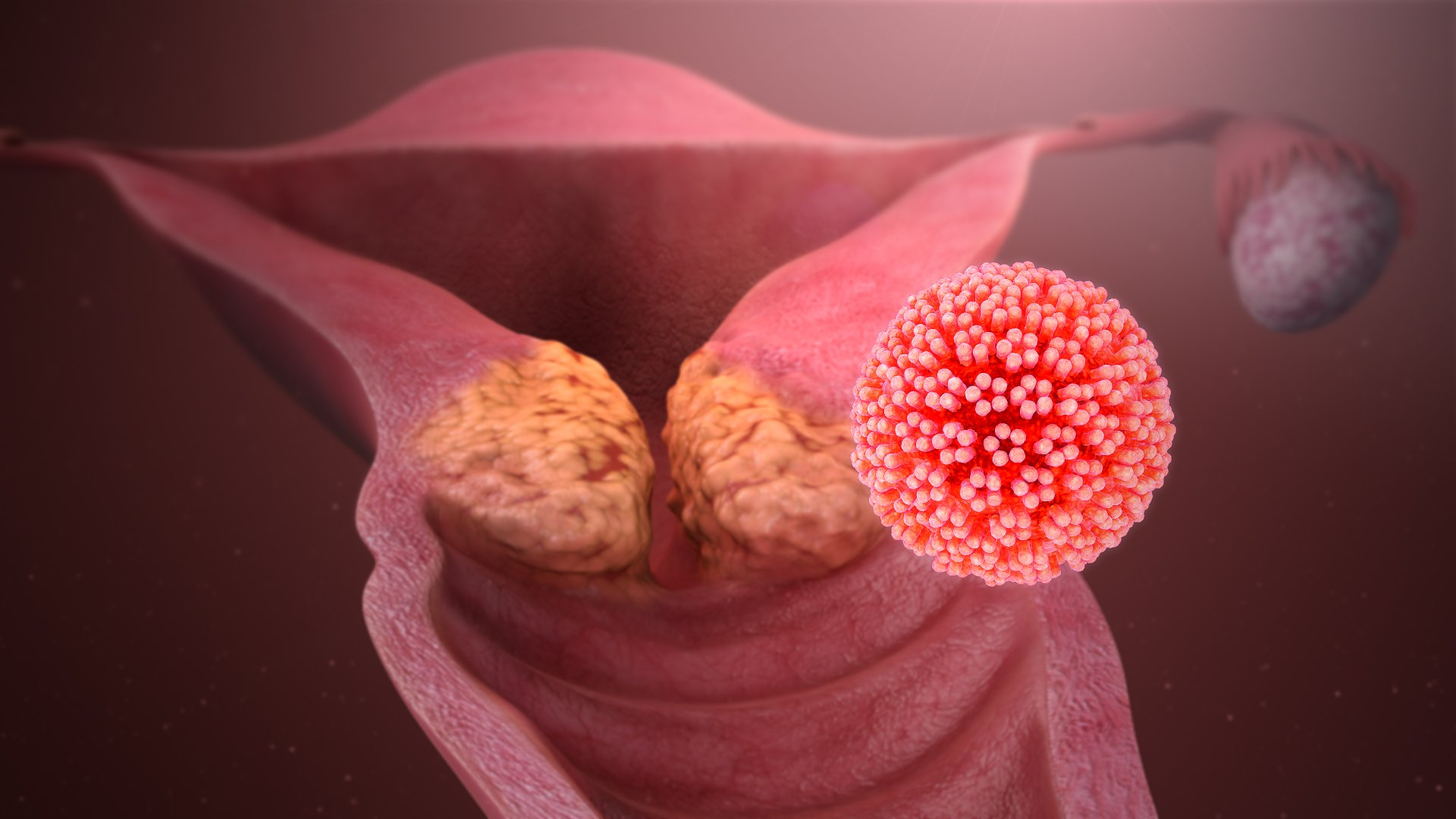 How Much Do You Know About STDs And How To Avoid Them