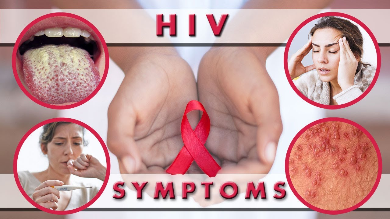 HIV infection in women: the first signs  Symptoms of AIDS in