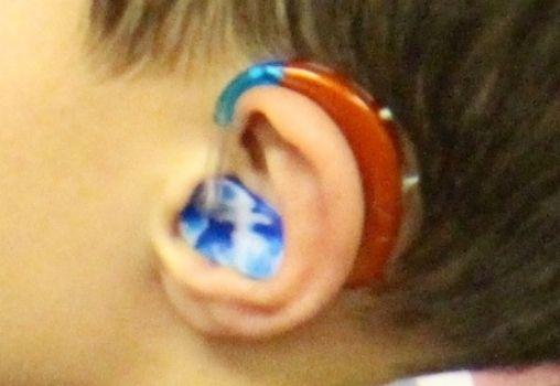 a boy wearing a hearing aid